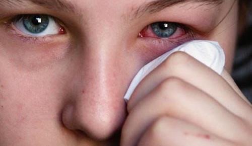 Viêm tấy ổ mắt khi bị viêm đa xoang