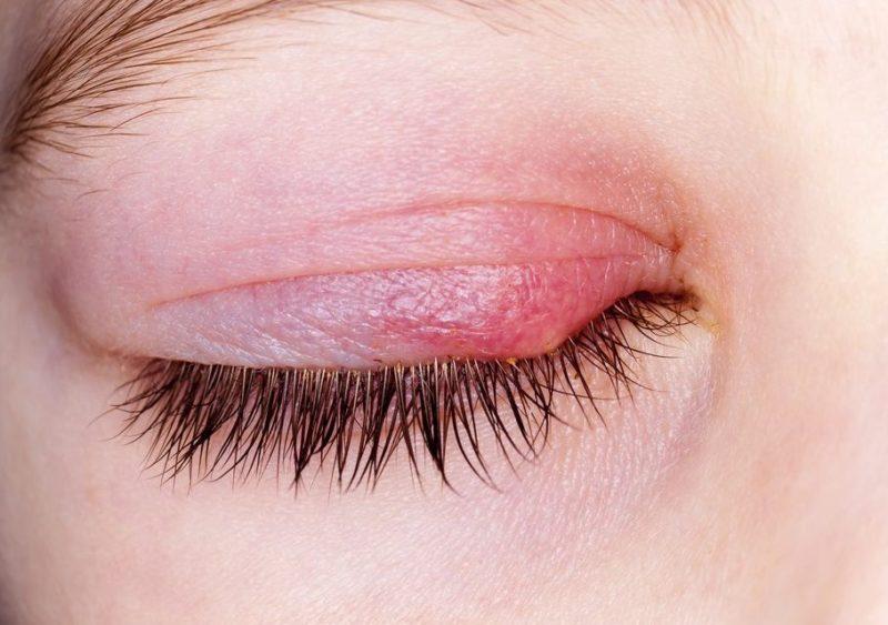 Các biến chứng ở mắt do viêm xoang thường gặp là viêm tuyến lệ, viêm mí mắt,...