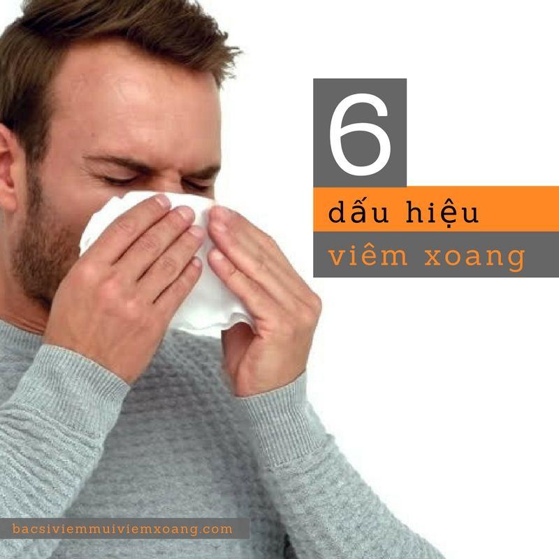 6 dấu hiệu viêm xoang bạn cần nhận biết sớm