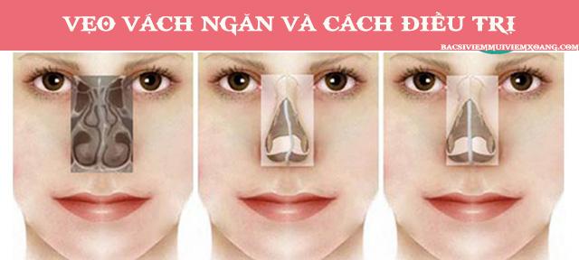 Vẹo vách ngăn mũi - vẹo vách ngăn mũi tiếng anh - lệch vách ngăn mũi bên trái