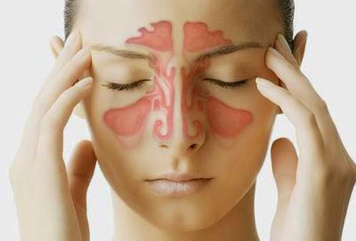 phân biệt viêm xoang với cảm cúm thông thường
