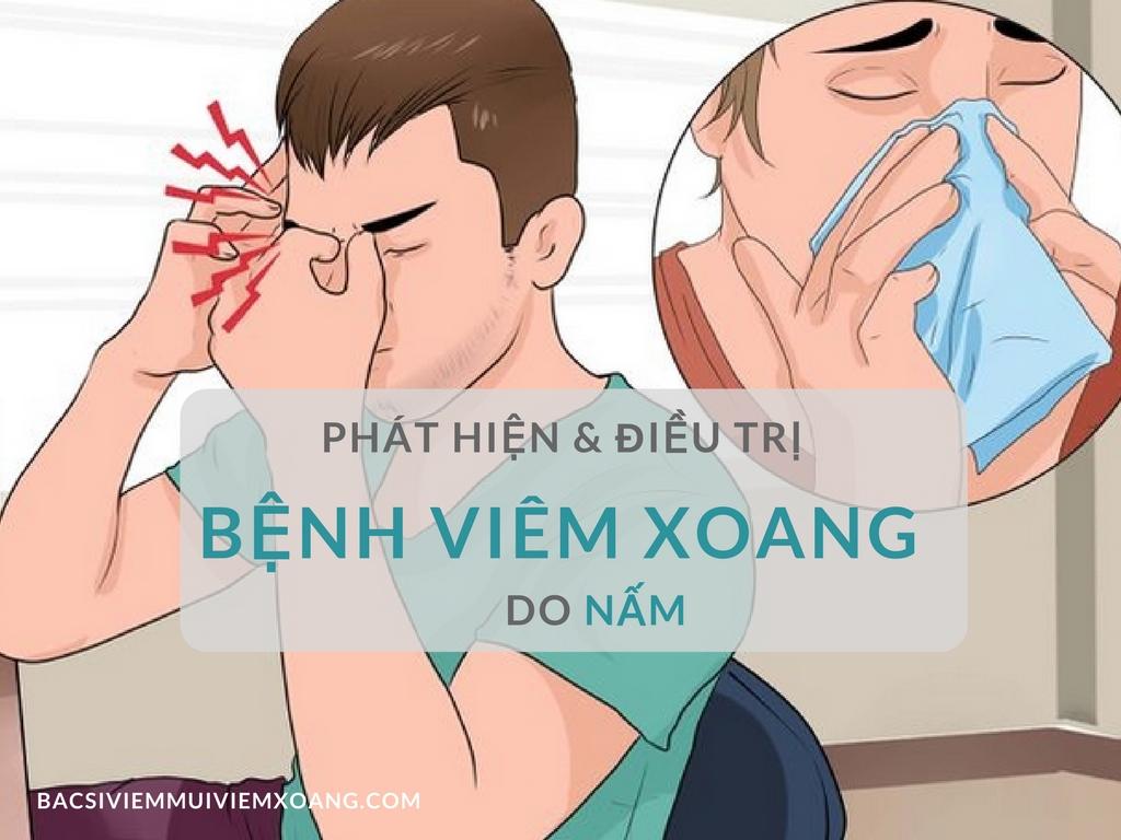 Phát hiện và điều trị bệnh viêm xoang do nấm