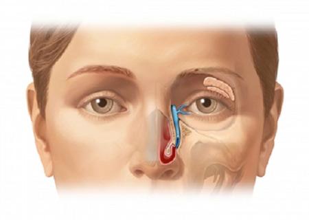 Một số trường hợp viêm xoang biến chứng đến mắt có thể phải phẫu thuật