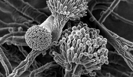 Viêm xoang do nấm tiến triển nặng có thể đe dọa tính mạng