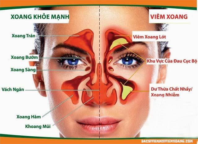 Cấu tạo và chức năng xoang mũi