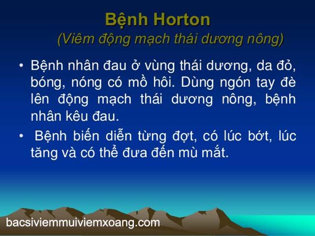 Đau đầu ở thái dương do bệnh Horton