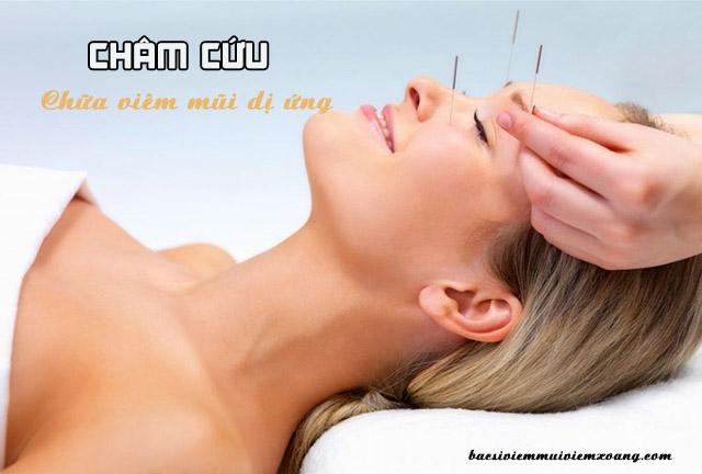 Cách chữa viêm mũi dị ứng bằng châm cứu
