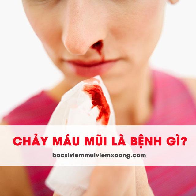 Chảy máu mũi là biểu hiện của bệnh gì? chảy máu mũi bên trái là bệnh gì - chảy máu mũi là hiện tượng gì - chảy máu mũi là triệu chứng bệnh gì