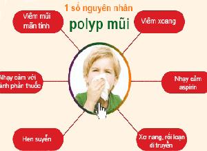 ngo-ngang-cac-nguyen-nhan-gay-benh-polyp-mui-2
