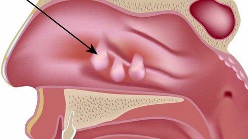 phẫu thuật cắt Polyp mũi