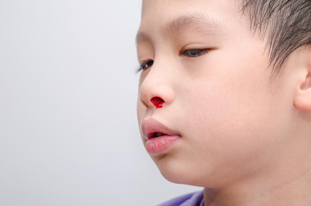 những bệnh gây chảy máu cam