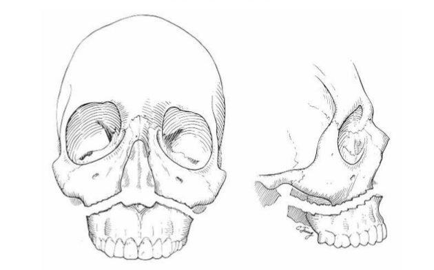 Các chấn thương vùng mặt gần các xoang có thể dẫn đến viêm nhiễm xoang