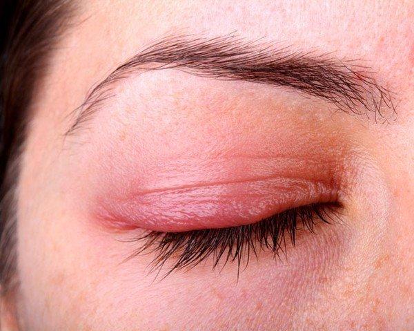 Một bệnh nhân gặp biến chứng ở mí mắt do viêm xoang cấp