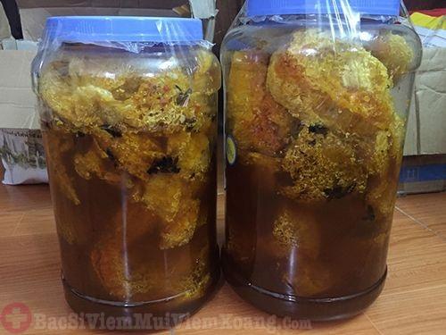 Trị viêm mũi dị ứng bằng sáp ong