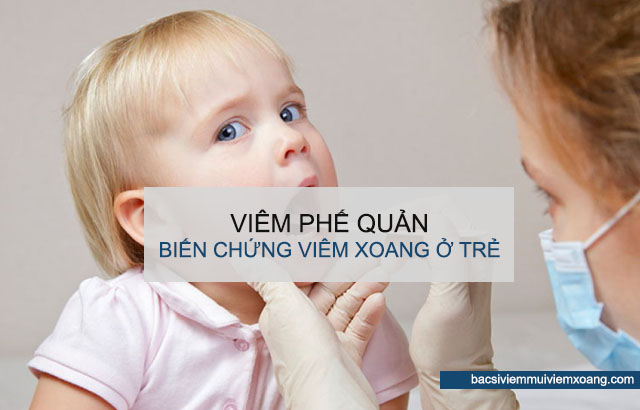 Bệnh viêm xoang ở trẻ em gây biến chứng viêm phế quản