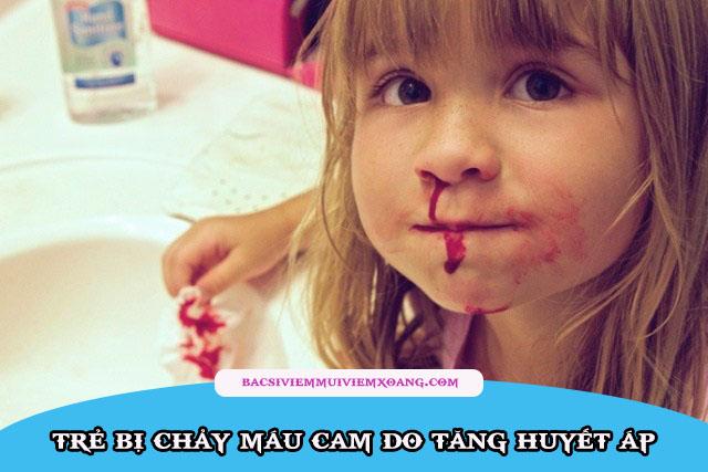 Trẻ hay chảy máu cam là bệnh gì?