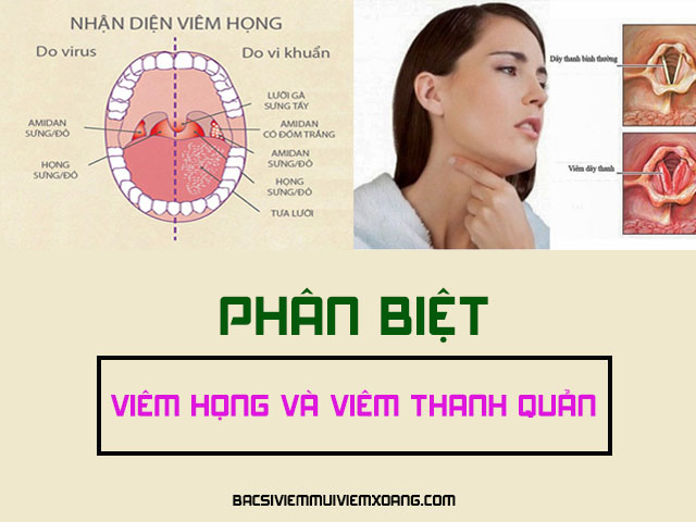 Viêm họng và viêm thanh quản