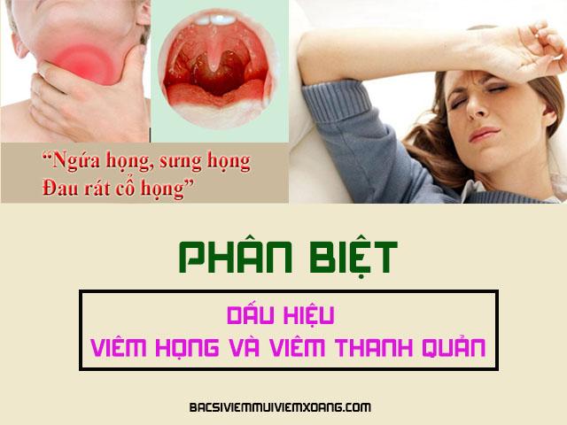 Dấu hiệu viêm họng viêm thanh quản