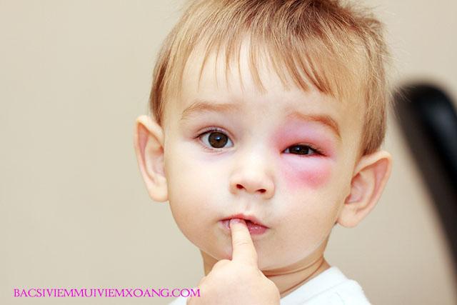 Viêm xoang gây ngứa mắt - viêm xoang gây đau hốc mắt - viêm xoang gây ngứa mắt - viêm xoang gây lồi mắt