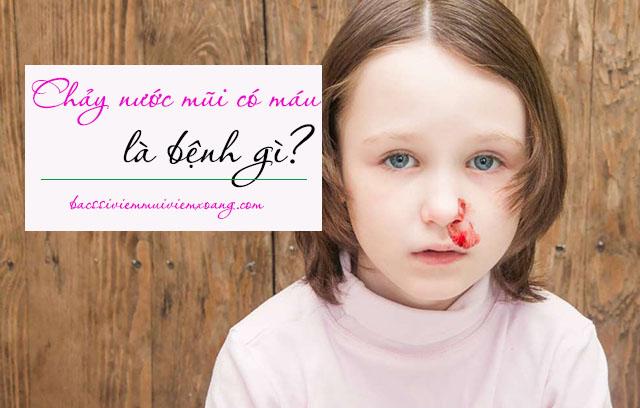 Vậy nước mũi có máu là bệnh gì? - dịch nhầy mũi có máu tươi