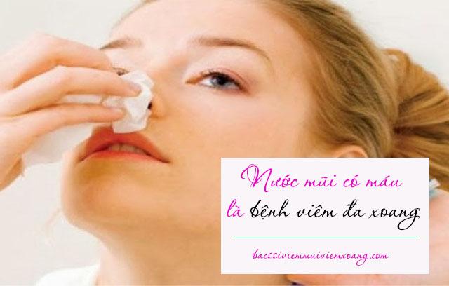 Nước mũi có máu là bệnh viêm đa xoang - nước mũi ra máu