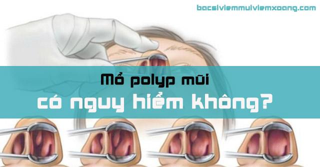 Mổ polyp mũi có nguy hiểm không?