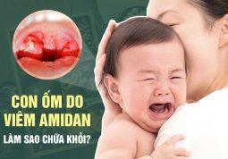 Viêm amidan ở trẻ em