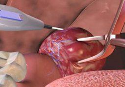 Phẫu thuật cắt amidan phải được chỉ định rõ ràng